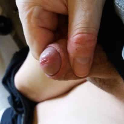 Mini Penis Lusttropfen